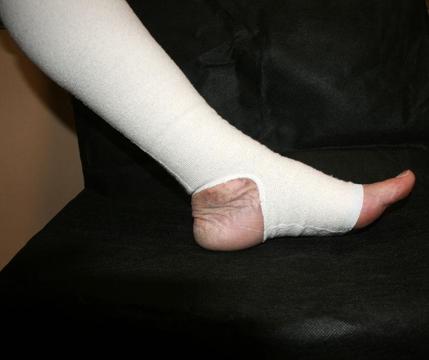 Úlceras Varicosas – Como Fazer Um Curativo Em Feridas Nas Pernas.